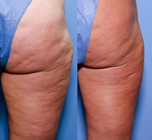 Cellulite Treatment Gallery - Patient 58172340 - Image 2