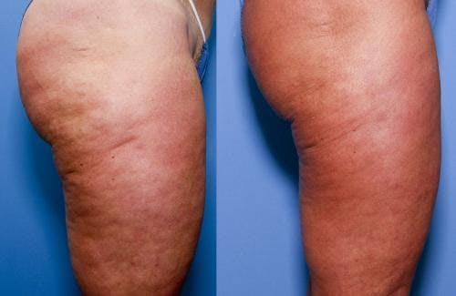 Cellulite Treatment Gallery - Patient 58172340 - Image 3