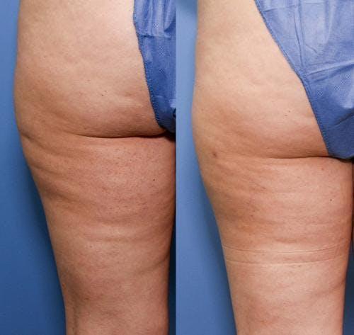 Cellulite Treatment Gallery - Patient 58172342 - Image 1