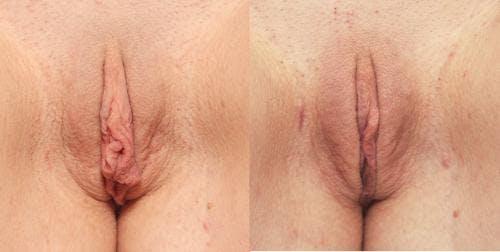 Labiaplasty Gallery - Patient 58172341 - Image 1