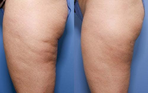 Cellulite Treatment Gallery - Patient 58172342 - Image 2