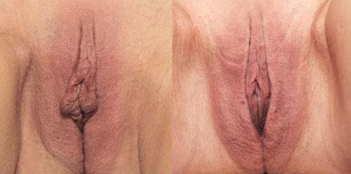 Labiaplasty Gallery - Patient 58172343 - Image 1