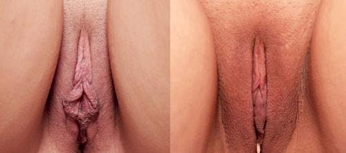 Labiaplasty Gallery - Patient 58172344 - Image 1