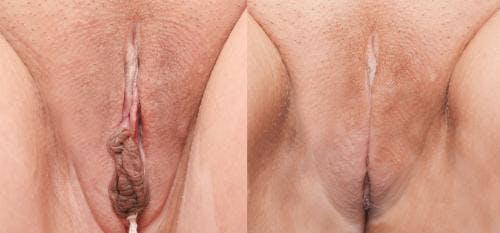 Labiaplasty Gallery - Patient 58172346 - Image 1