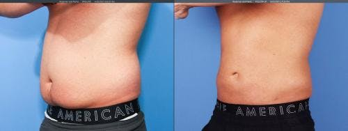 Liposuction Gallery - Patient 58172347 - Image 2