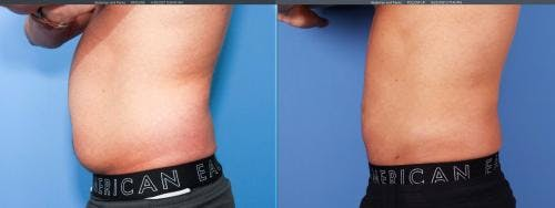 Liposuction Gallery - Patient 58172347 - Image 3