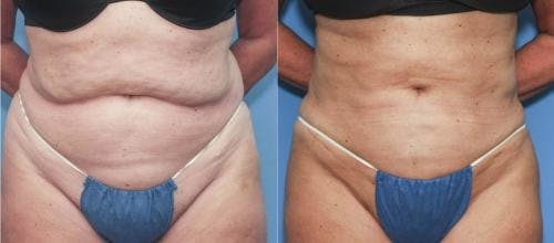 Liposuction Gallery - Patient 58172348 - Image 1