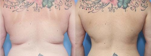 Liposuction Gallery - Patient 58172349 - Image 1