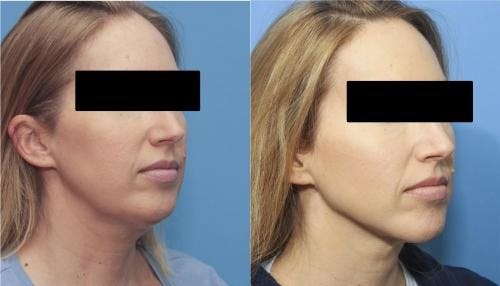 Liposuction Gallery - Patient 58172350 - Image 1