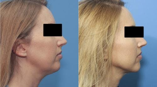 Liposuction Gallery - Patient 58172350 - Image 2