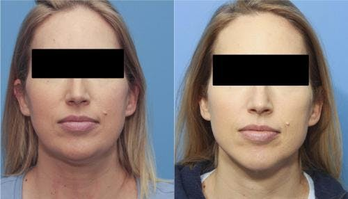 Liposuction Gallery - Patient 58172350 - Image 3