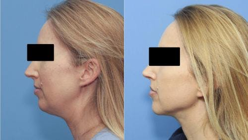 Liposuction Gallery - Patient 58172350 - Image 4