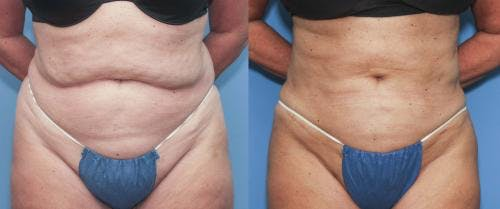 Liposuction Gallery - Patient 58172351 - Image 1