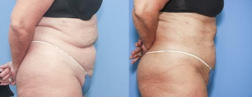 Liposuction Gallery - Patient 58172351 - Image 2