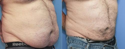 Liposuction Gallery - Patient 58172352 - Image 1