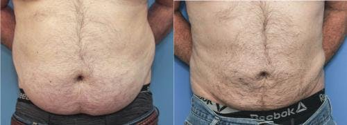Liposuction Gallery - Patient 58172352 - Image 3