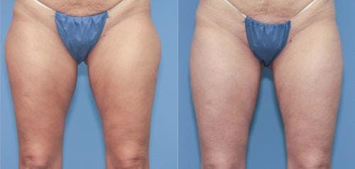 Liposuction Gallery - Patient 58172354 - Image 1