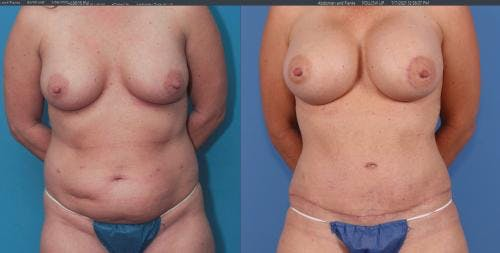 Mommy Makeover Gallery - Patient 58172355 - Image 1
