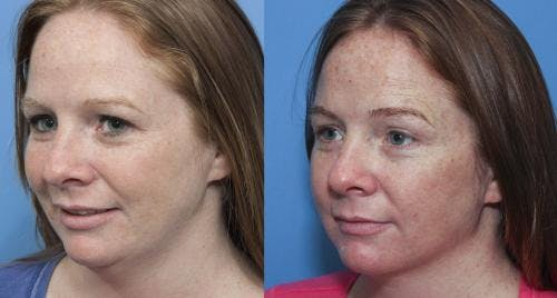 Liposuction Gallery - Patient 58172356 - Image 1