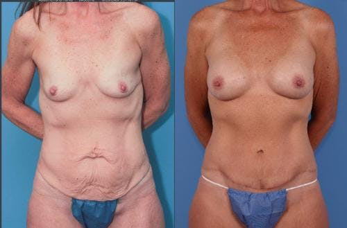 Mommy Makeover Gallery - Patient 58172357 - Image 1