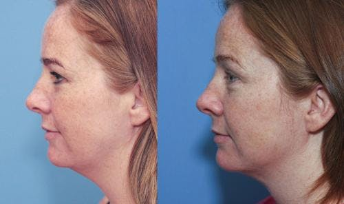 Liposuction Gallery - Patient 58172356 - Image 2