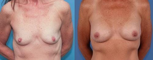 Mommy Makeover Gallery - Patient 58172357 - Image 2