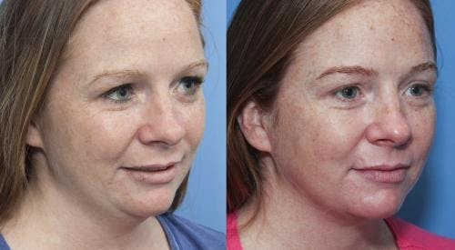 Liposuction Gallery - Patient 58172356 - Image 3