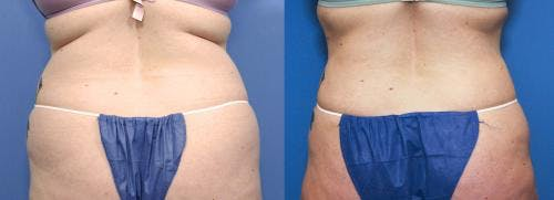 Liposuction Gallery - Patient 58172359 - Image 1