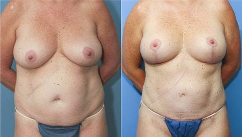 Mommy Makeover Gallery - Patient 58172358 - Image 1