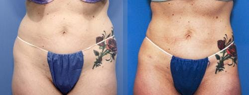 Liposuction Gallery - Patient 58172359 - Image 2