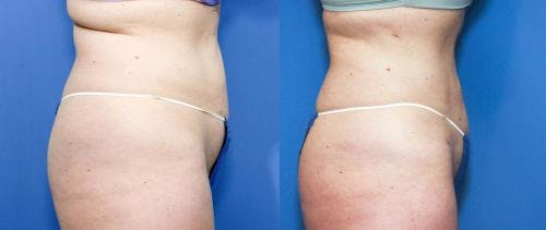 Liposuction Gallery - Patient 58172359 - Image 3