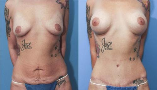 Mommy Makeover Gallery - Patient 58172360 - Image 1
