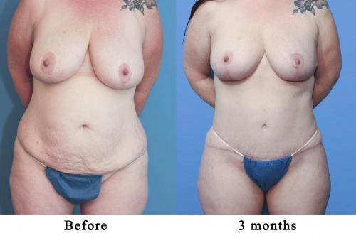Mommy Makeover Gallery - Patient 58172368 - Image 1