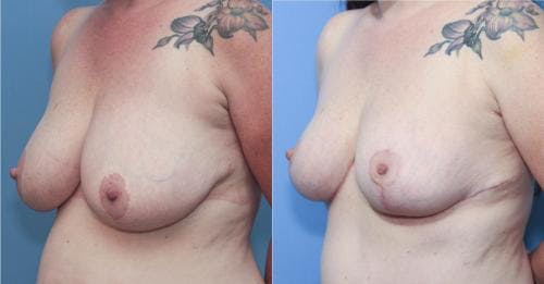 Mommy Makeover Gallery - Patient 58172368 - Image 2