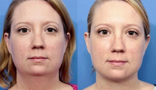 Liposuction Gallery - Patient 58172369 - Image 1