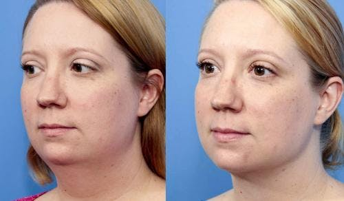 Liposuction Gallery - Patient 58172369 - Image 2