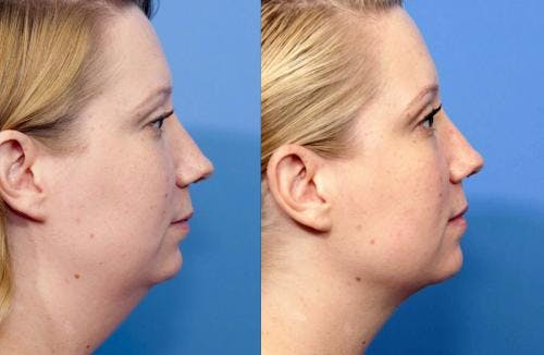 Liposuction Gallery - Patient 58172369 - Image 3