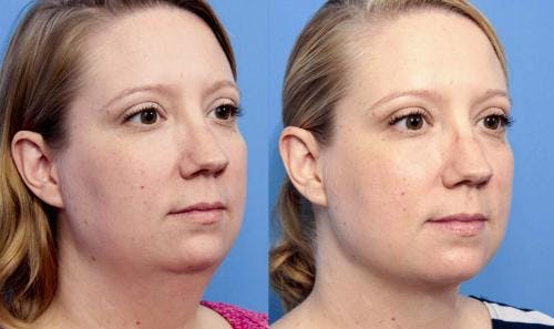 Liposuction Gallery - Patient 58172369 - Image 4