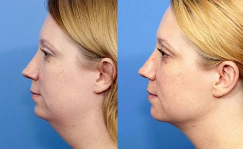 Liposuction Gallery - Patient 58172369 - Image 5