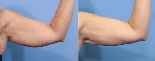 Liposuction Gallery - Patient 58172371 - Image 1