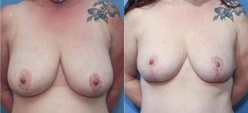 Mommy Makeover Gallery - Patient 58172374 - Image 4