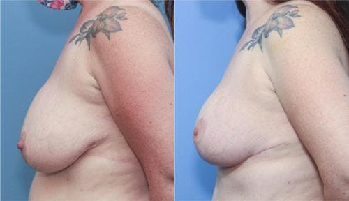 Mommy Makeover Gallery - Patient 58172374 - Image 5