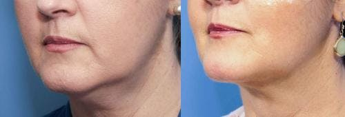 Liposuction Gallery - Patient 58172375 - Image 1