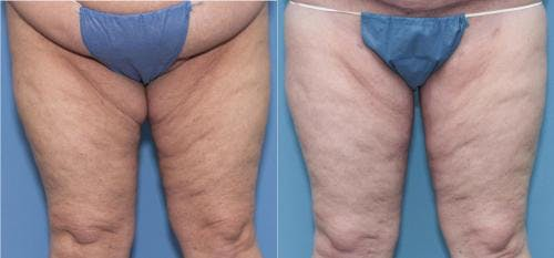 Thigh Lift Gallery - Patient 58172373 - Image 1