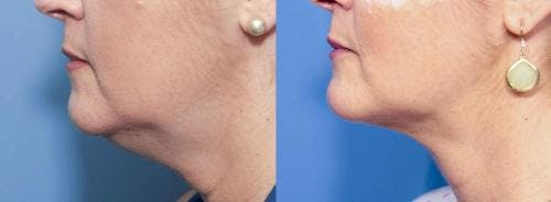 Liposuction Gallery - Patient 58172375 - Image 2