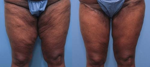 Thigh Lift Gallery - Patient 58172377 - Image 1