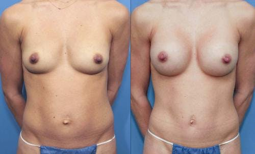 Mommy Makeover Gallery - Patient 58172376 - Image 1