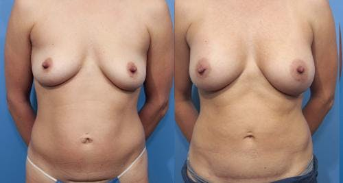 Mommy Makeover Gallery - Patient 58172378 - Image 1