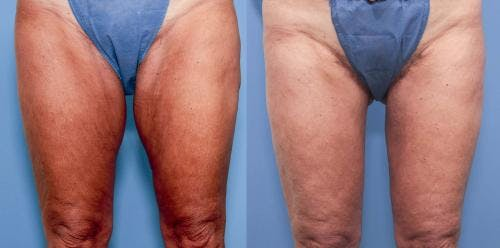Thigh Lift Gallery - Patient 58172380 - Image 1