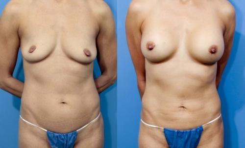 Mommy Makeover Gallery - Patient 58172384 - Image 1